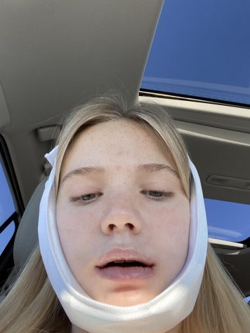 Chase Flori (11) ready to go home after her wisdom teeth removal.